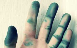 Как отмыть зелёнку с кожи и ногтей: самые эффективные способы. Как смыть зеленку с кожи