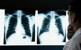 Мрт или рентген что вреднее
