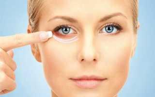 Как быстро убрать ушиб под глазом. Как убрать синяк под глазом от удара: полезные советы