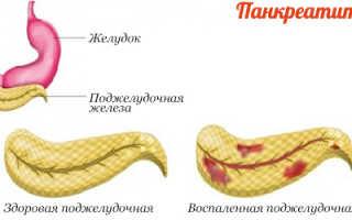 Полезные продукты при панкреатите