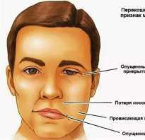 Микроинсульт: причины, симптомы, лечение. Симптомы инсульта и микроинсульта, как вовремя распознать
