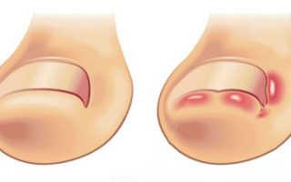 Что делать при врастании ногтя на ноге. Как вылечить вросший ноготь в домашних условиях