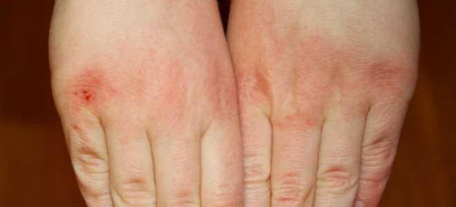 Если трескается и сохнет рука на руке. Сохнет и облазит кожа на руках: причины и лечение